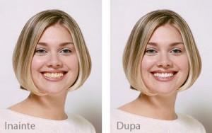 Tratament de albire a dintilor in Iasi la Anatomic Dent, cabinet stomatologic in Iasi