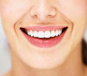 Albirea dintilor in Iasi la Cabinet stomatologic Anatomic Dent Iasi