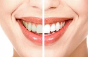 Tratament de albire a dintilor in Iasi la cabinet stomatologic Iasi Anatomic Dent