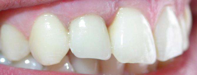Cum sa va intretineti implantul dentar